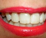 teeth-thumb-200x127-65993